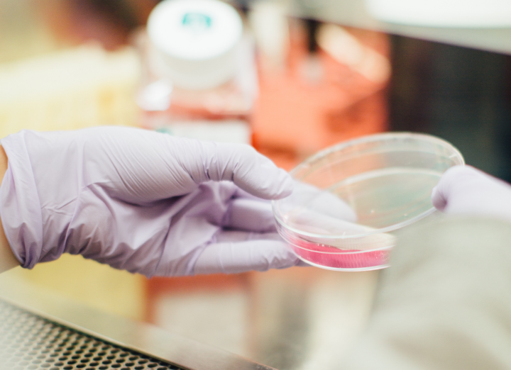 Optimize Target Product Profile – TPP : Pharma R&D Strategy
